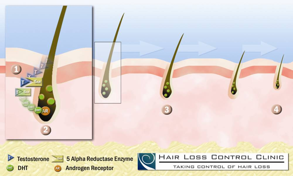 dht steroids hair loss